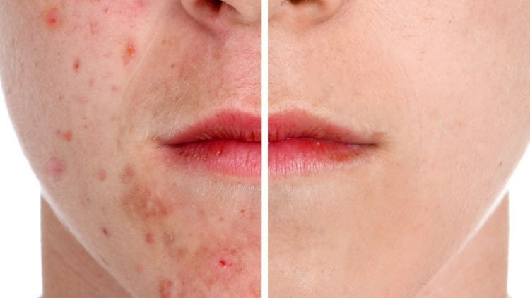 Essential Oils for Acne Scars - Part 2 - Empowered Living